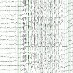 Electroencefalograma, EEG