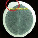tumor de hueso, exostosis, tumor oseo, saliente osea, protuberacion osea