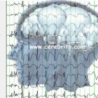 epilepsia, aprendizaje, crisis, convulsion, TDAH, aprender
