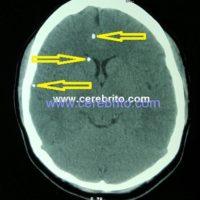 neurocisticercosis, cerdo, taenia solium