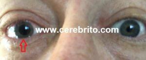 anisocoria, asimetria, pupilas