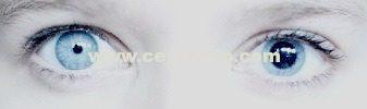Anisocoria, pupilas, asimetria